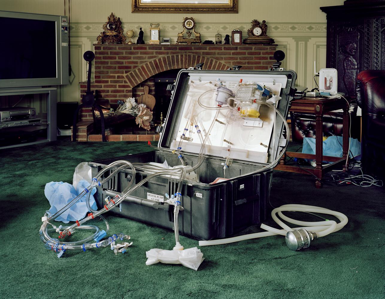 Perfusion kit by Murray Ballard