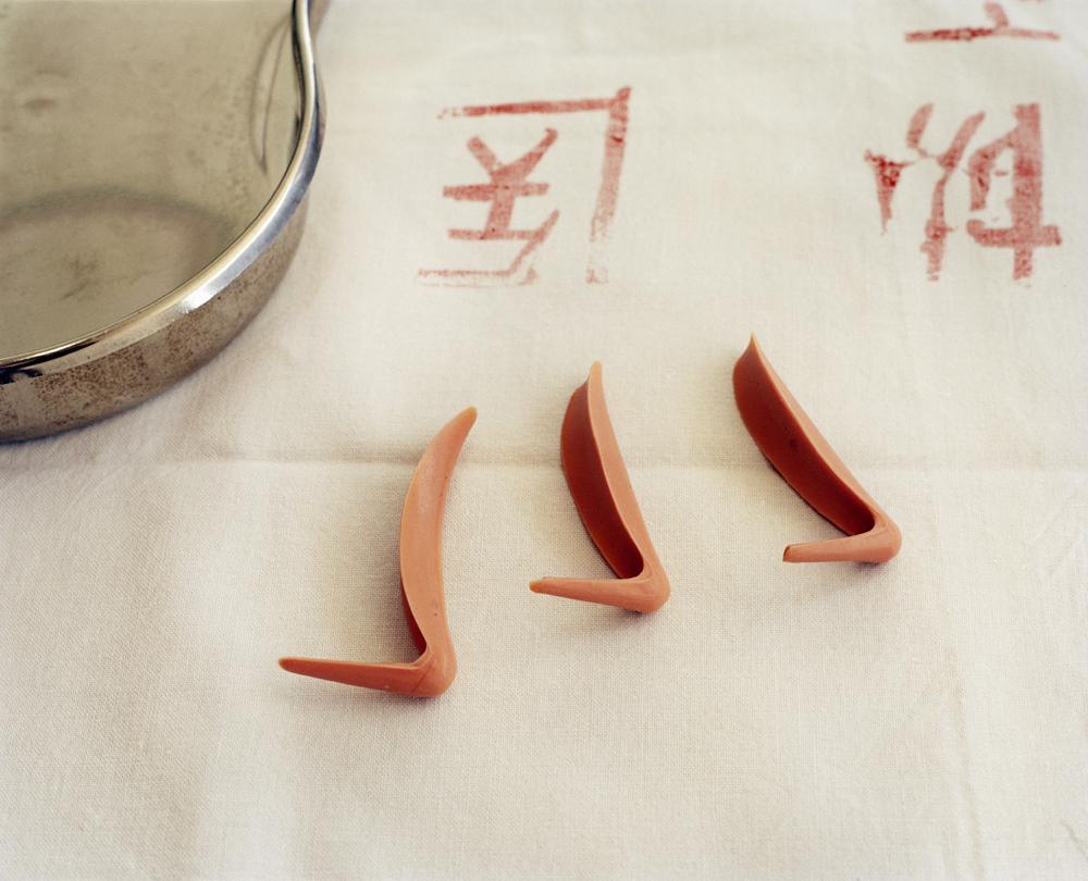 Nose bridge prosthetic implants, to increase size of nose. Beijing, China